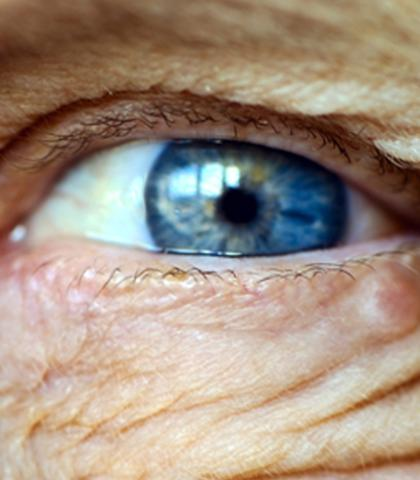 Costa Rica: new eyecare technology at CAJA
