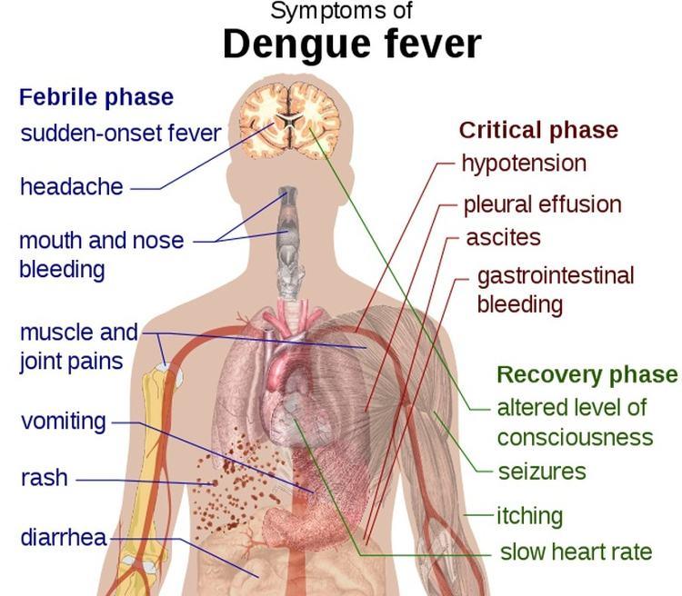 Dengue_4