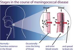 course-of-meningococcal-dis(1)