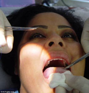 Diet trend: A 'miracle' patch that is sewn onto the tongue for a month is the latest extreme weight-loss technique. The pain of eating solid foods with the patch forces wearers to consume only liquids Photo: drchaucay.com