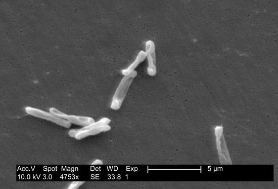 Individual, drumstick-shaped C. difficile bacilli seen through scanning electron microscopy