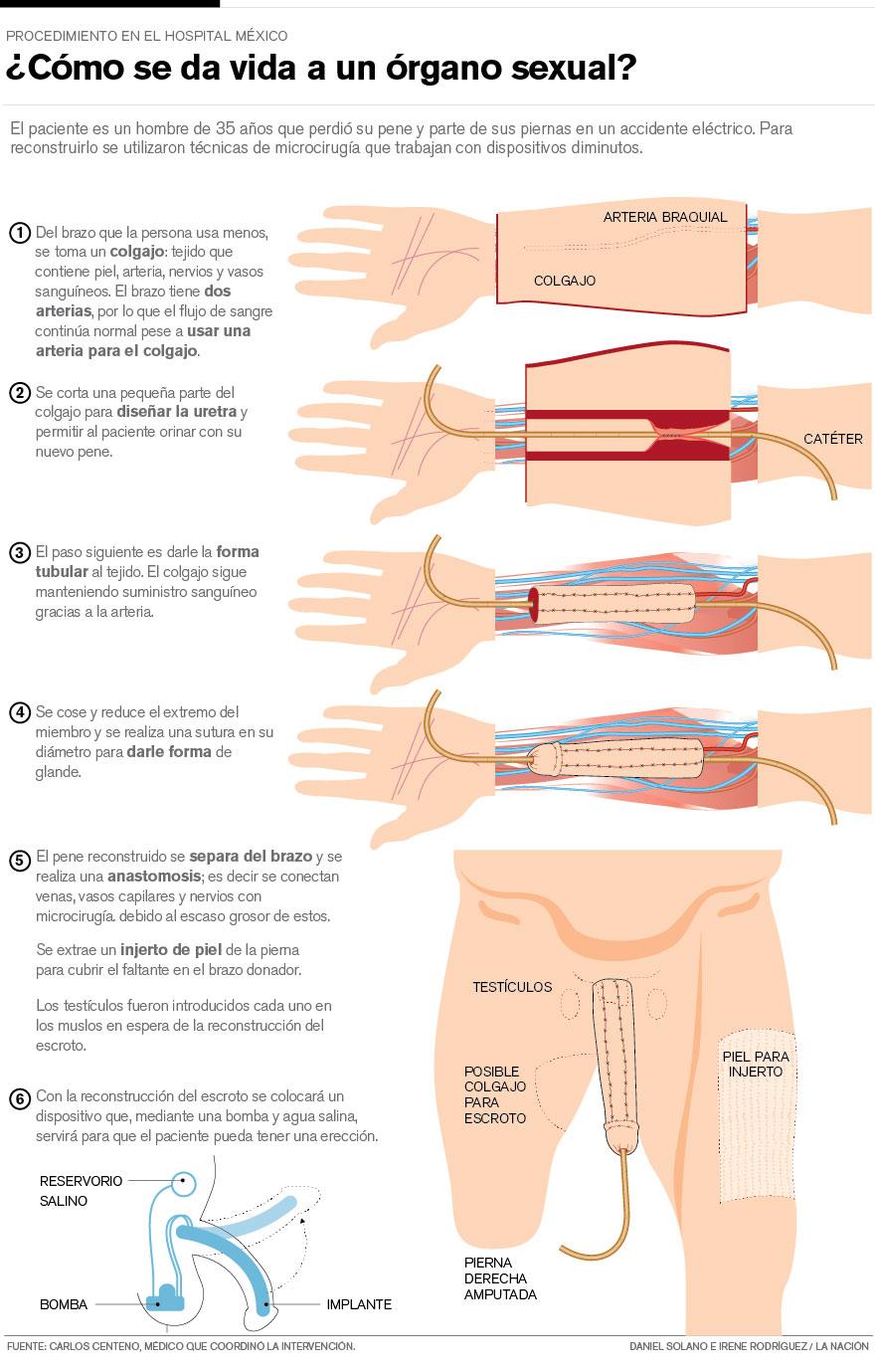 brazo-pene-operacion_LNCIMA20150903_0226_1