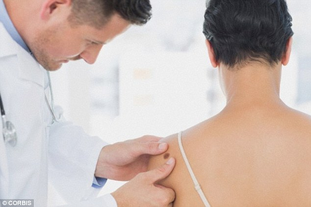 skin-cancer-moles