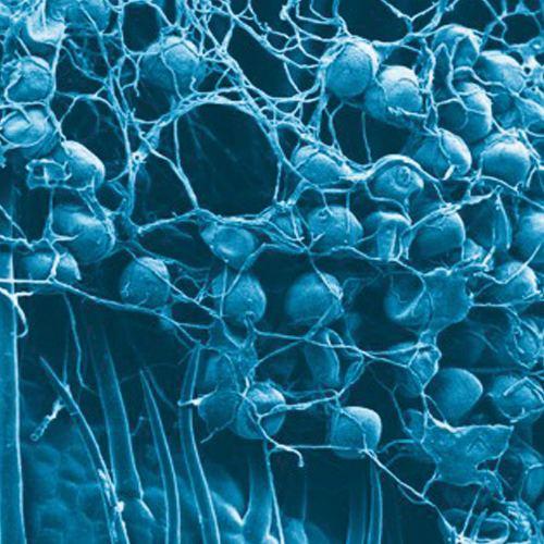 Insetticida-Spinosad-fermentazione-batterio-Saccharopolyspora-spinosa