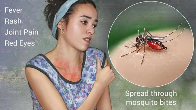 Dengue In Costa Rica On Upward Trend As Central America Faces An Epidemic