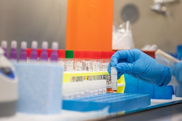 Costa Rica Has More than 6,000 Tests To Detect COVID-19